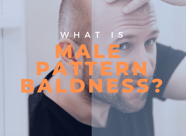male pattern baldness image