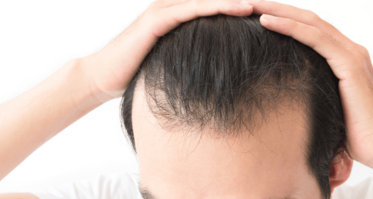 thinning hair shampoo image