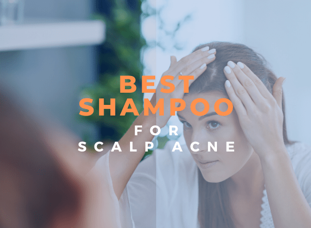 best shampoo for scalp acne image