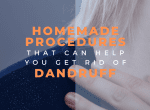 homemade procedures for dadruff image