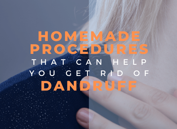 homemade procedures for dadruff image